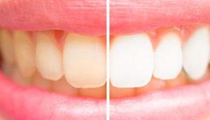 Teeth Whitening Program