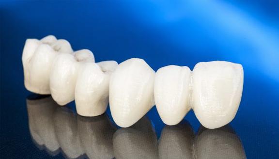 Benefits of CEREC Dental Crowns