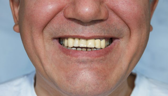 Restore Your Smile: Dental Implants vs Dentures