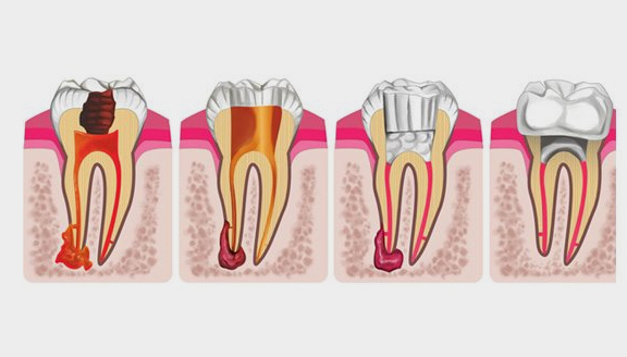 Heroes Dental & The 'R' Word: Root Canal