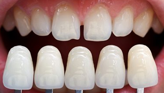 The Smile-Worthy Benefits of Porcelain Veneers