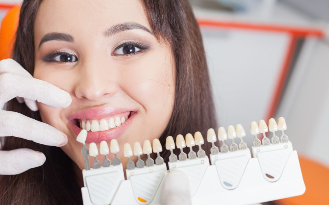 The Benefits of Dental Implant Surgery for Tooth Replacement
