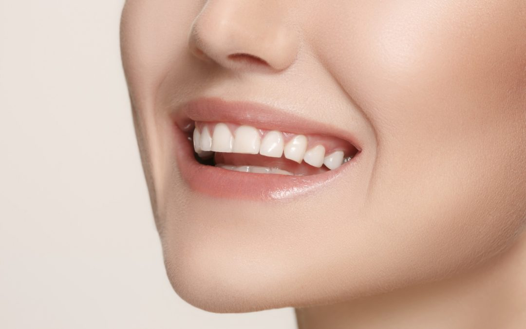 Don't Let Missing Teeth Get in the Way Of Your Most Confident Smile
