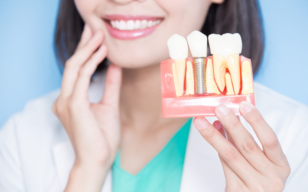 Reclaim a Gorgeous Smile: The Benefits of Dental Implants